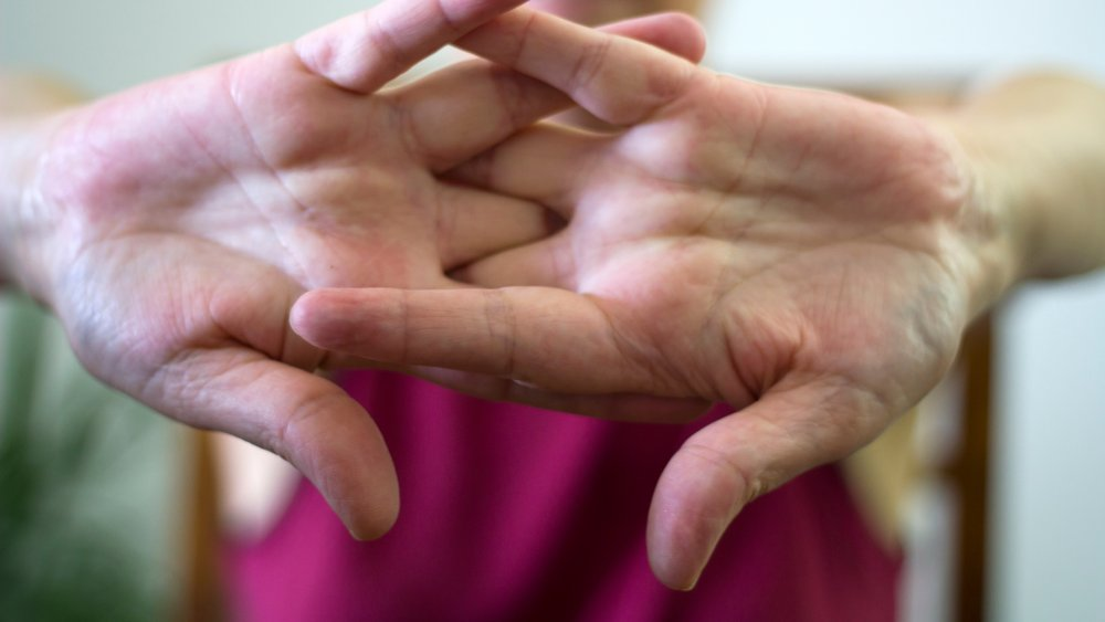 Fact Or Fiction: Cracking Your Fingers Causes Arthritis
