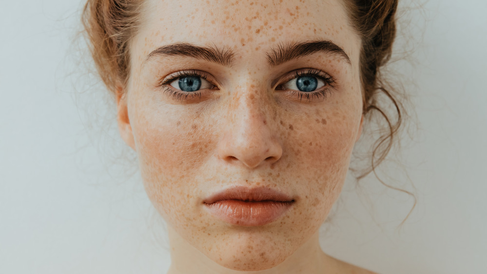 Moles vs freckles: What's the difference?