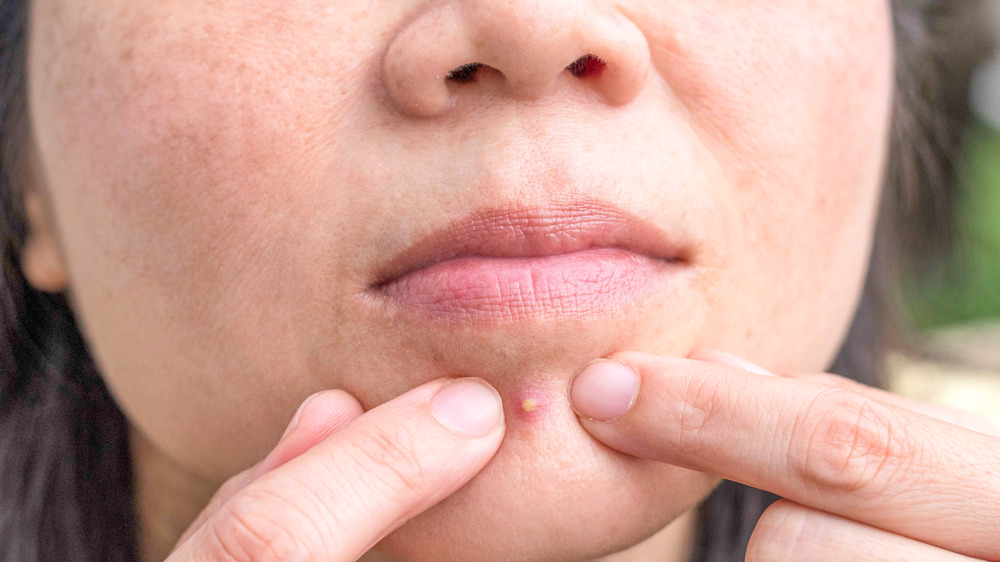 Woman popping her own chin pimple