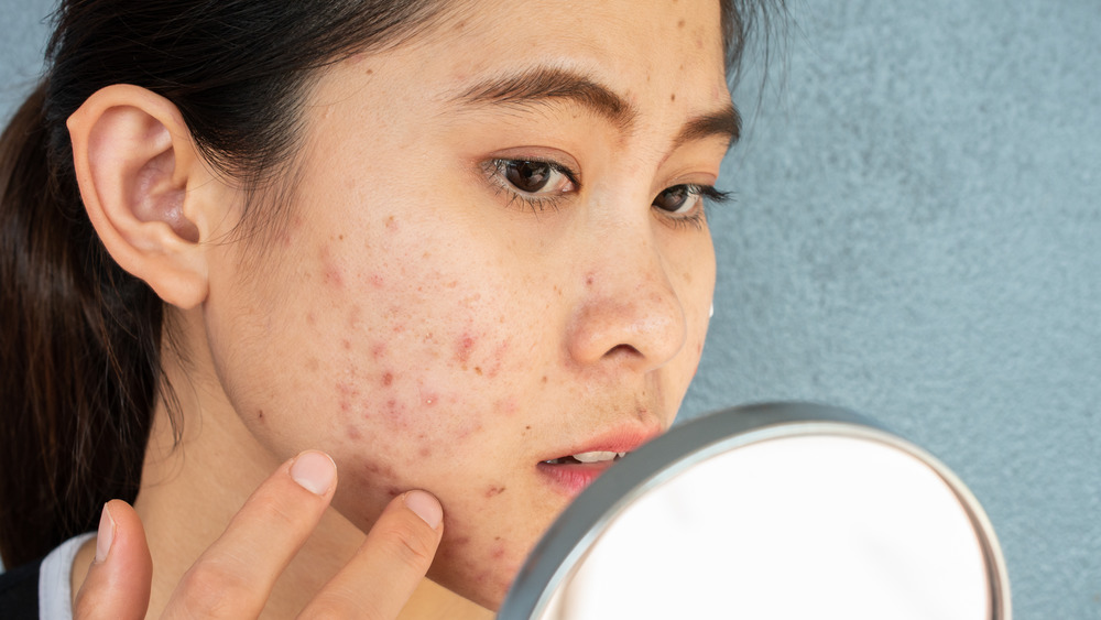 woman with acne looking in mirror
